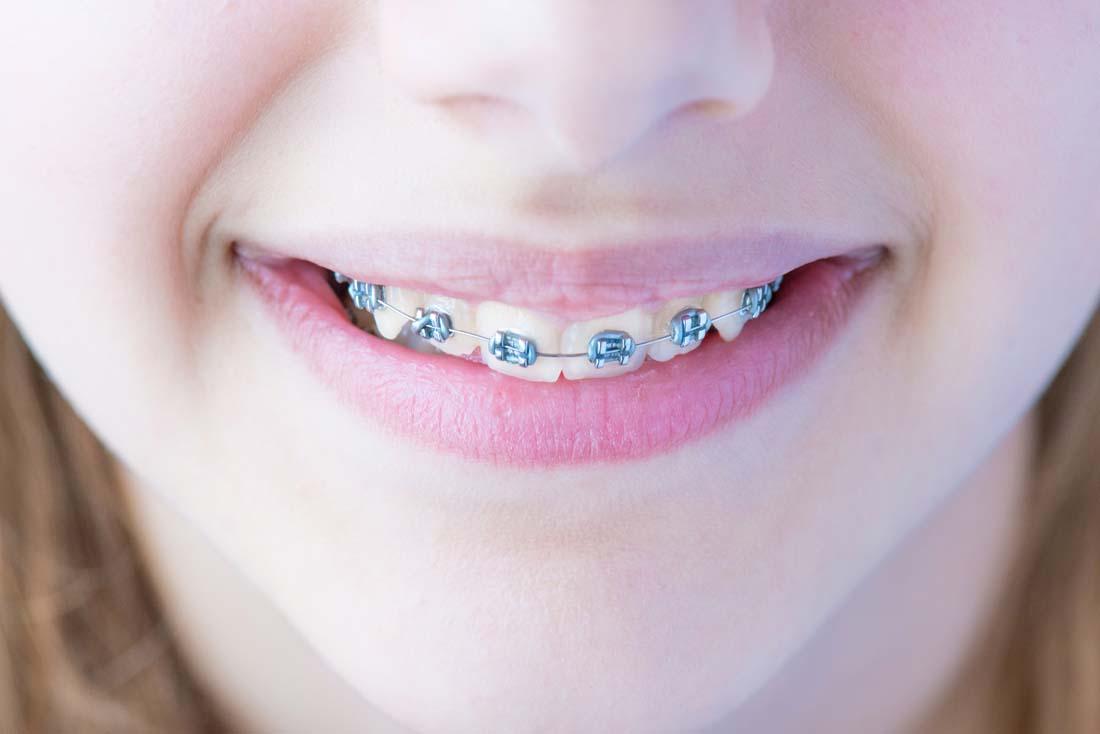 牙齿矫正 <br> 全新  价格:1000 <br> <img src=http://k.kqzp.cn/img/up/img/58f9d06c458cd.jpg