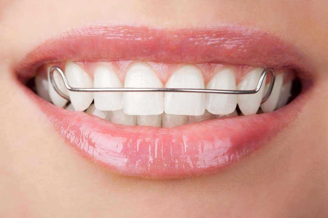 牙齿美容 <br> 全新  价格:1000 <br> <img src=http://k.kqzp.cn/img/up/img/58f9d1003d837.jpg