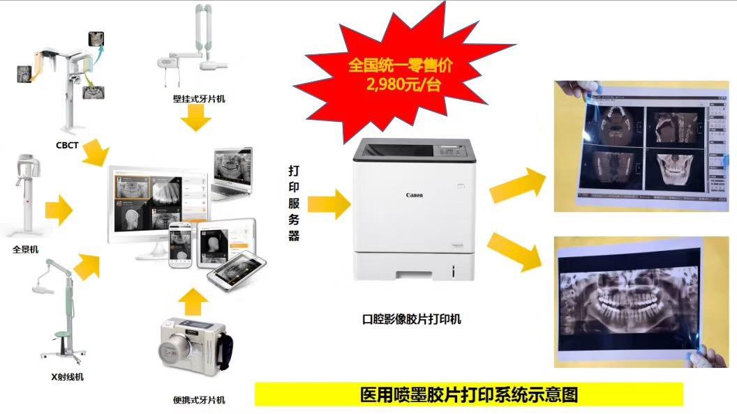 日本佳能口腔全景机& CBCT胶片专用打印机 <br> 全新  价格:2980 <br> <img src=http://k.kqzp.cn/img/up/img/5c9c395a60ee0.jpeg