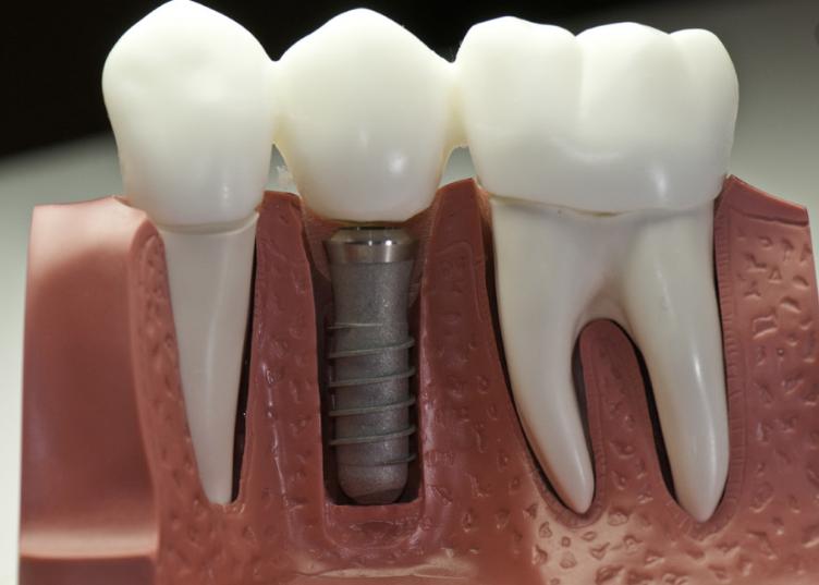 图片说明: 种植牙